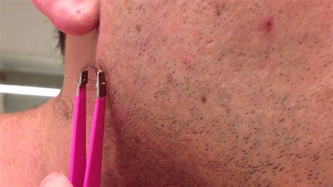 pubic hair world record the longest grossest ingrown hair in history youtube