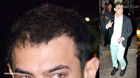 salman khan hair transplant cost does aamir khan need a hair transplant youtube