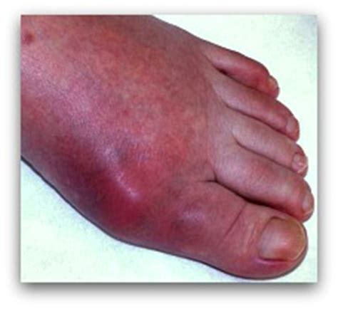Podagra IS Gout In Big Toe . . . or The WHOLE Foot