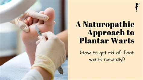 a naturopathic approach to plantar warts getting rid of