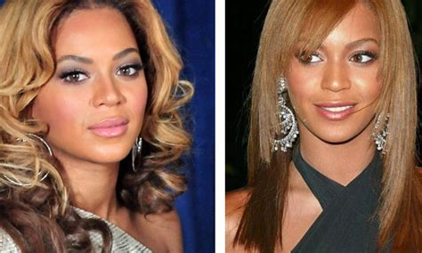 beyonce knowles plastic surgery before amp after