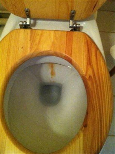 r 233 curer les traces de tartres dans les toilettes