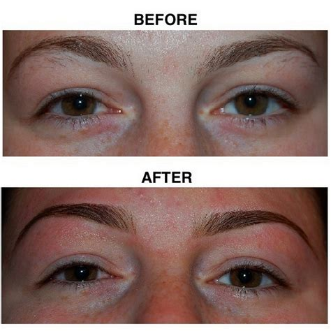 before and after before and after electrolysis about cosmetic