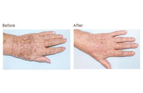 effects of laser hair removal on tattoos om hair