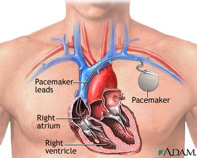 where does a st go permanent pacemaker and icd implantation consult
