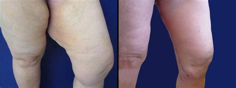 lifting cuisses tunisie chirurgie des cuisses cosmetic tour