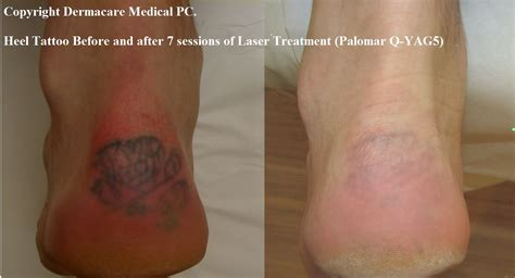 tattoo laser removal