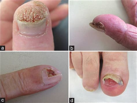 planters wart on finger wart on finger nails and how to get rid of it