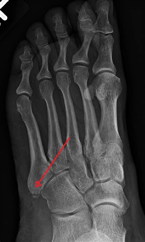 fracture du cadre obturateur droit 28 images fracture du scapho 239 de sympt 244 mes