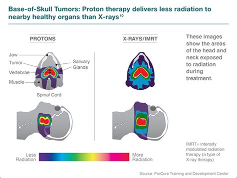 Proton Cancer by Proton Therapy For And Neck Cancer Seattle Cancer