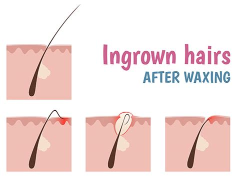 Home Remedies To Get Rid Of Ingrown Hair Boldsky Com