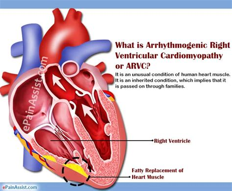 what does in causes symptoms of arrhythmogenic right ventricular