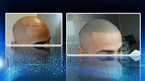 scalp micro hair pigmentation smp youtube