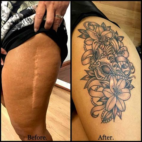 30 beautiful scar concealing tattoo designs tattooblend