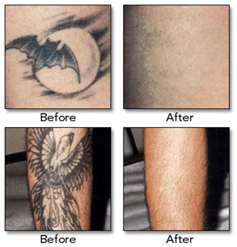 hair amp tattoo lifestyle removal laser tattoos