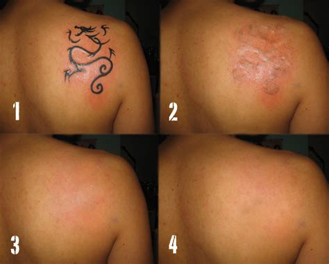 tattoo removal houston what to expert at your tattoo