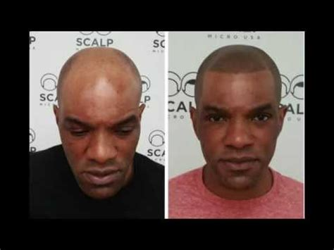 scalp micropigmentation new york hairline scalp micro