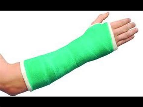 cast on how to make a arm cast 2