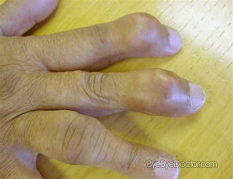Gout ? Symptoms, Diet, Causes, Treatment, Pictures, Medication