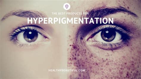 best for the best products for hyperpigmentation in 2017 how to