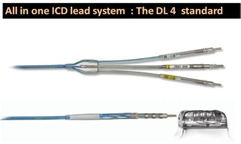 Which State Does Md Stand For by All In One Icd Lead System Does The
