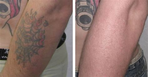 laser tattoo removal manhattan nyc tattoo removal center