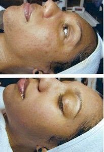 dark spots on pinterest lighten skin black skin care