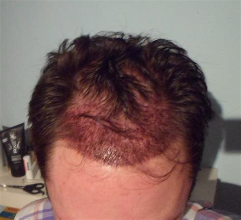 Erfahrungen Mit Danwood Häusern by Haartransplantation Forum Anbieter Haartransplantation