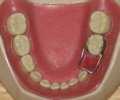 band and crib space maintainer pin by cc hartman on orthodontic appliances