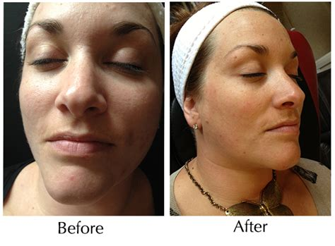 before and after before and after acne following just one skinbase