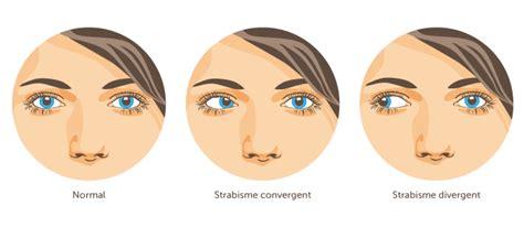 strabisme cabinet d ophtalmologie des flandres