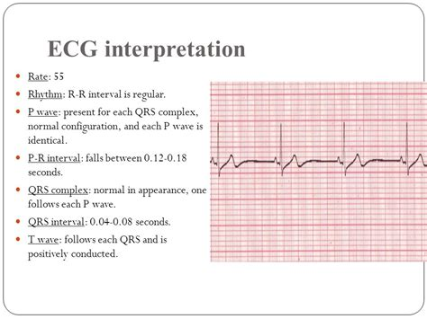 cardiac arrhythmia ppt