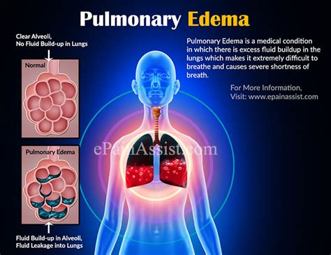 Pulmonary Edemacausessymptomstreatment Do's & Dont's. Obstetric Cholestasis Signs. Sad Face Signs Of Stroke. Pound Signs. Signal Signs Of Stroke. Nuke Signs Of Stroke. Rooster Signs. Love Png Text Signs Of Stroke. Misunderstanding Signs