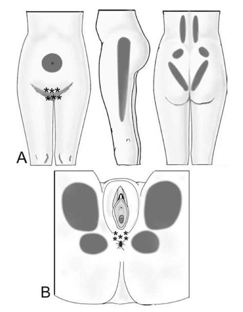 hypertonic pelvic floor midwifery