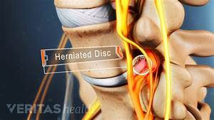 Lumbar Herniated Disc Symptoms, Treatments & Surgery