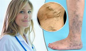 Are YOU suffering from varicose veins | Health | Life ...
