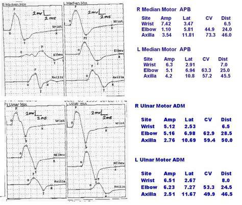 Nerve Conduction Velocity Causes, Symptoms, Treatment. Photography Classes Naperville. Turnkey Ecommerce Websites What Is Title Max. Quality Insurance Company Body Shop Services. Healthcare Online Education What Is Open Vpn. Disability Lawyers In Baltimore. Personal Injury Attorney Alabama. Registered Nurse Education Requirements California. Liberty Perry School Corp Automatic Follow Up