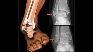 Lateral ankle sprain treatment & rehabilitation exercises ...