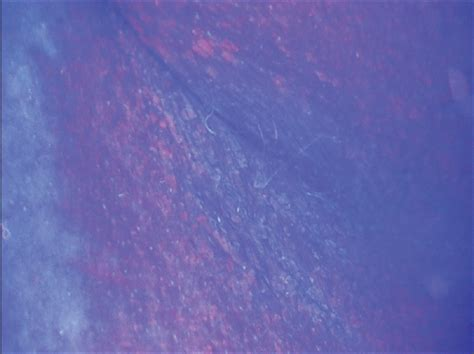 image gallery erythrasma fluorescence