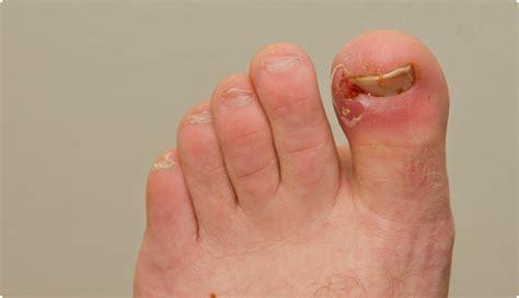 comment arr 234 ter ingrown toenails
