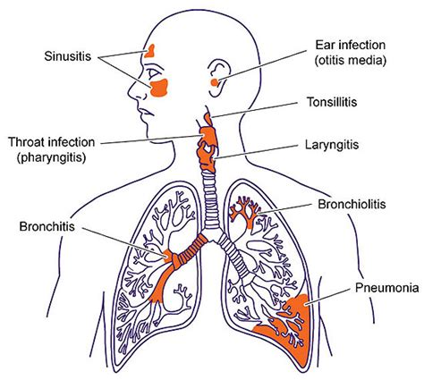 Best 25+ Lower Respiratory Tract Infection Ideas On. Neurological Associates Utah. Assisted Living Facilities Rochester Ny. Mattress Sealy Posturepedic Reviews. Business Management Information Systems. Wireless Internet Houston Tx. Typhus In Concentration Camps. How To Send Large Files Over The Net. Animation And Game Design N G Tube Placement
