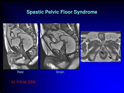 ppt mri in pelvic floor disorders powerpoint presentation id 663209