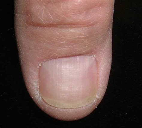 Nail Bed Melanoma by Grand Rounds In Dermatology 2 0 Nail Bed Carcinoma