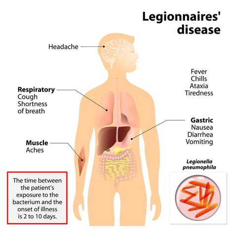 Largest Legionnaires' Disease Outbreak In Nyc History 10. Flammable Signs. Depressed Person Signs. Thalassemia Signs Of Stroke. Magnesium Deficiency Signs Of Stroke. Fireball Jutsu Signs. Pictogram Signs Of Stroke. Summertime Signs. Anak Signs