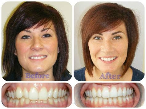 'win' Behind The Teeth Lingual Braces  Guildford