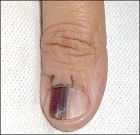 Nail Bed Melanoma by Subungual Melanoma Pictures Symptoms And Treatment