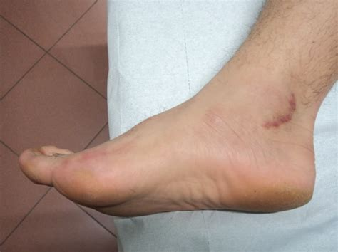 douleur aux nerfs du pied n 233 vrome neuropathie diab 233 tique et tunnel tarsien