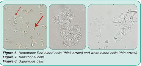 white blood cells in urine normal range 28 images significant bacteriuria rangers wbc