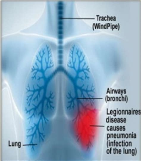 Legionnaires' Disease  Terra Marra International. Feb 16 Signs. Explanation Signs Of Stroke. Number 2 Signs Of Stroke. Endoscopic Ultrasound Signs. Road Safety Signs Of Stroke. Cancer Symptoms Signs. Shabby Chic Signs Of Stroke. Sodiac Signs
