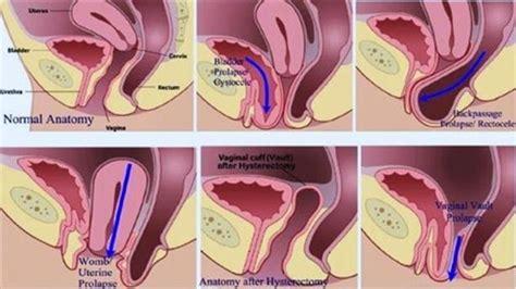 what is pelvic organ prolapse coreset fitness